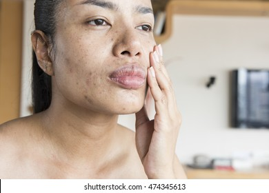 Women have dry skin and turn to flaky skin, or very oily skin.Include the bumpy skin, sensitive, rashes, hormonal acne, freckles, and hole problems.Want a right method of treatment and therapy.