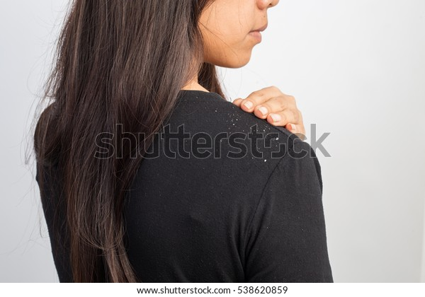 women having dandruff in the hair and shoulder