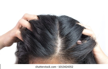 women head with dandruff Caused by the problem of dirty. caused by skin disease or Seborrheic Dermatitis. It has white scaly and it will cause itch. on health care shampoo and beauty product concept.