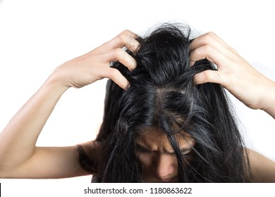women head with dandruff Caused by the problem of dirty. Or caused by skin disease or Seborrheic Dermatitis. It has white scaly and it will cause itch. isolated on white background and clipping path.