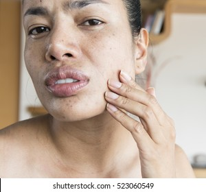 Women problems with dry skin and turn to flaky skin, very oily, make-up refuses to stay on, bumpy, sensitive, rashes, hormonal acne, freckles, and acne hole problems. need right method of treatment.