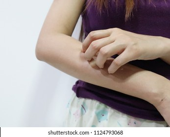 women scratch the arm concept