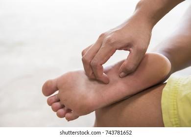 Women scratching feet