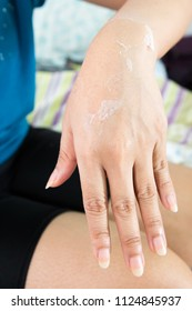 Women show Skin peeling on her hand.