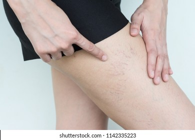 Women showing varicose and spider veins on the skin of leg. Have a physical problem.