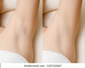 Women underarm hair removal. Concept before and after shaving laser