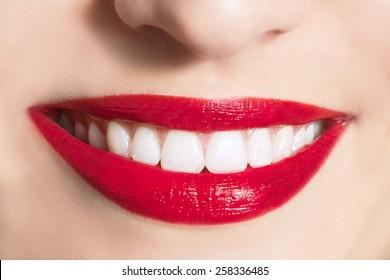 Women's snow-white smile.