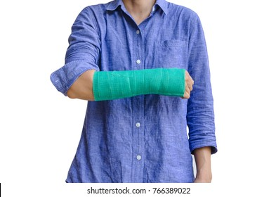 worker woman accident on arm with green cast isolated on white.
