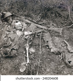 World War 1. Human wreckage in No Man's Land, Chemin des Dames, France. The remains of a British soldier on the battlefield during World War I. Ca. 1914-1915.