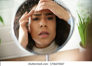 Worried african teen girl checking facial skin problem look in mirror. Young woman touch face squish pop zit pimple on forehead depressed by blackheads. Black skin care problem self care concept.