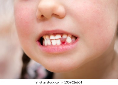 A wound in a child's mouth without one tooth is close-up. The girl just pulled out her baby teeth. Children's smile after visiting the dentist.