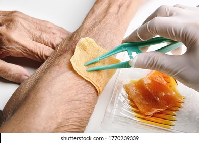 Wound dressing, Doctor cleaning and wash infected wound in chronic senior diabetes patient with normal saline and povidone iodine, Accidental wound care treatment in elder old man.
