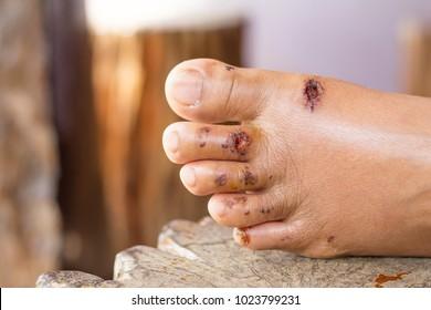 wound a foot  tel skin wound
