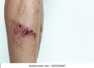 The wound form scabs. The wound happen during young man playing footbal and fall down on the footbal field. He get injured at his shin. It is big wound and abrasions. copy space