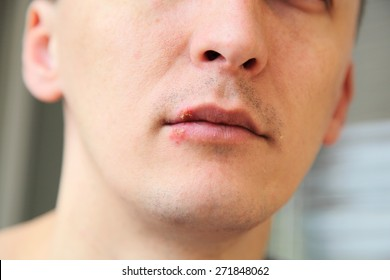 wound from herpes on the lips