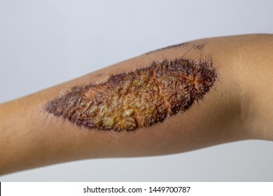 Scabs Images, Stock Photos & Vectors | Shutterstock
