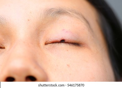 The wound medicine at eyelid, After removal fleck or birthmark by laser.
