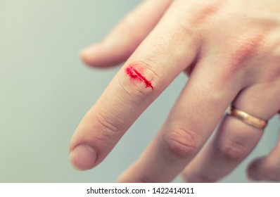 The wound on his arm. The index finger was stabbed - deep wound. the injured finger with a dirty open.
