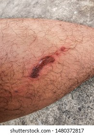 Wound from Hot Water Images, Stock Photos & Vectors