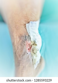 wound  rotten bedsore pressure ulcers