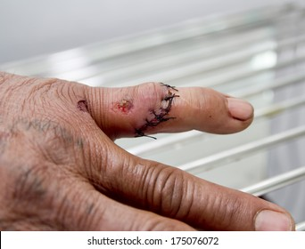 Wound and stitches finger