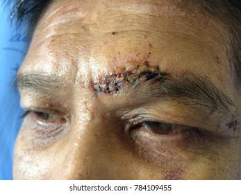 Wound with suture head injury in patient of hospital