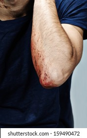 Wounded arm with blood