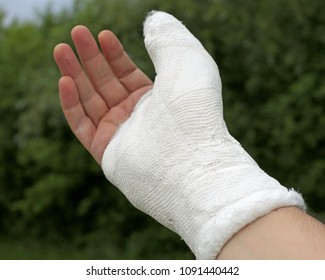 wounded hand of the injured person after the fracture of the right thumb phalanx