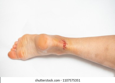 Wounded leg, Achil wounded, wounds sutured, seams