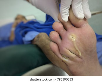 Wound,Infected wound diabetic foot disease with pus in patient of hospital .