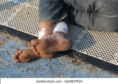 Wounds on the feet of homeless men He lay ill on the cement floor. And without food