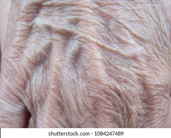Wrinkle or sagging skin on the hand of the elderly is the evidence of increasing age because the skin loses the collagen and elastin