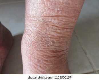 Wrinkle or sagging skin on the leg of the elderly is the evidence of increasing age because the skin loses the collagen and elastin