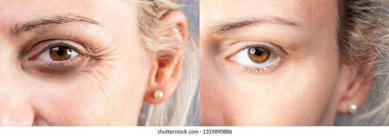 Wrinkled eye with dark circles before and after lifting and corr