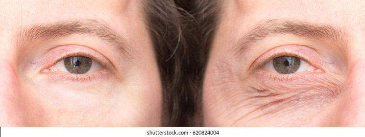 Wrinkled eye of man before and after a blepharoplasty