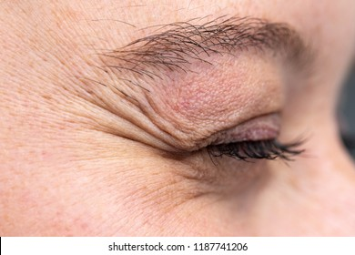 Wrinkled eye of young woman showing crow's feet