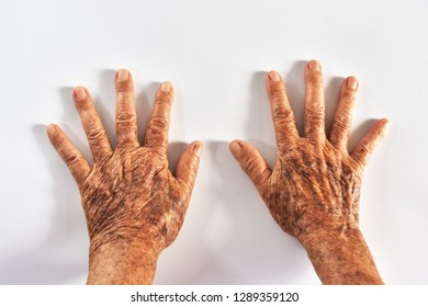 Wrinkled and freckled skin Of eldery asian women.Hands that have been used for a long time of older female.Body that has deteriorated.Beauty problems of older women.eldery health concept.