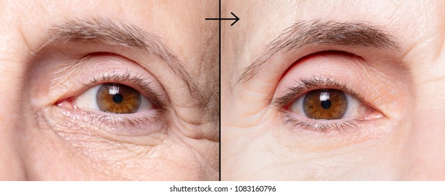 Wrinkled woman eyes before and after antiaging treatment