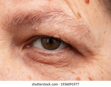 wrinkles around the eyes on a woman's face