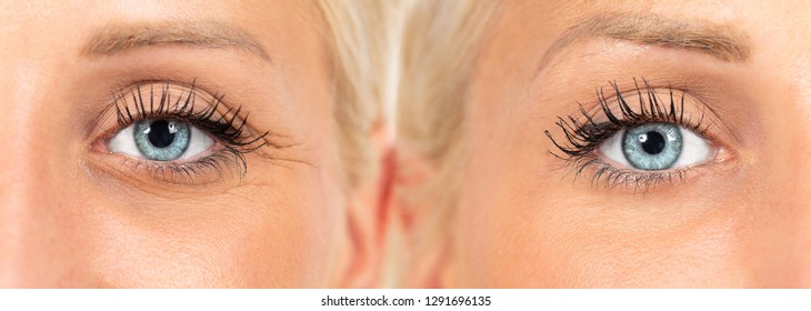 wrinkles cosmetic treatment, images composition showing results