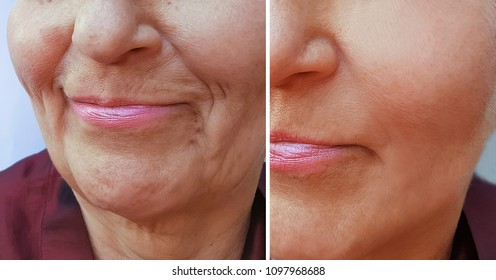 wrinkles elderly woman face before and after