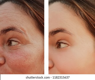 wrinkles of an eye woman's face before and after cosmetic procedures