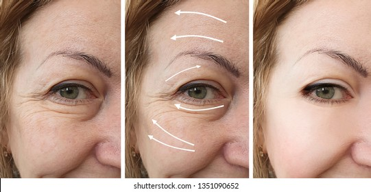 wrinkles of eyes   after procedures collage  arrow