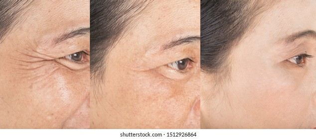 Wrinkles on the eyes.  and before and after melasma  and freckles  facial treatment on face  skin Problem and  make-up in women