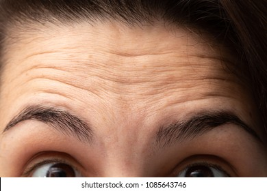 Wrinkles on the forehead of young girl