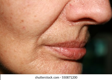 Wrinkles on the lips and chin. Nasolabial folds. Fluff mustache