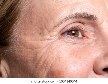 Wrinkles on woman face