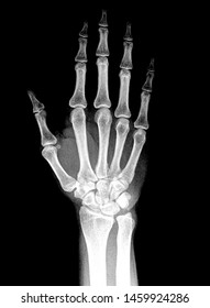 Wrist x ray anatomy radiology. Radiographic Anatomy - Hand AP Medical Coding, Anatomy And Physiology color on black background