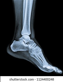 X ray of ankle joint