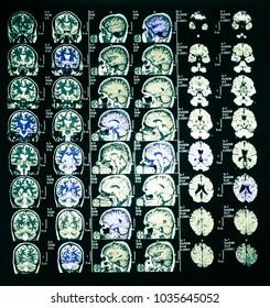 X ray of brain